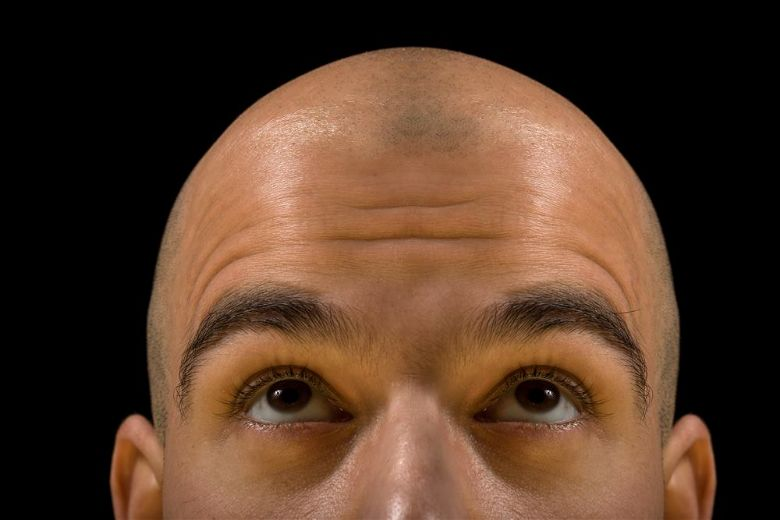 Anabolic steroids don't cause baldness